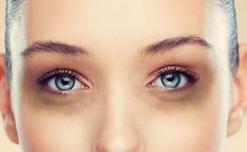 12 cách trị quầng thâm mắt đơn giản mà hiệu quả