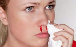 Nguyên nhân và cách xử lý nhanh khi bị chảy máu mũi