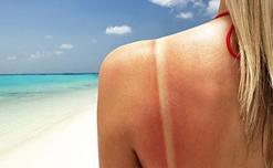 Những thực phẩm giúp loại bỏ làn da ăn nắng