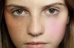 Cách trị nám da vùng má an toàn và hiệu quả