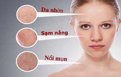 Chăm sóc da nhờn hiệu quả trong mùa nắng bạn nên biết.